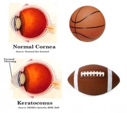 Common Causes of Keratoconus