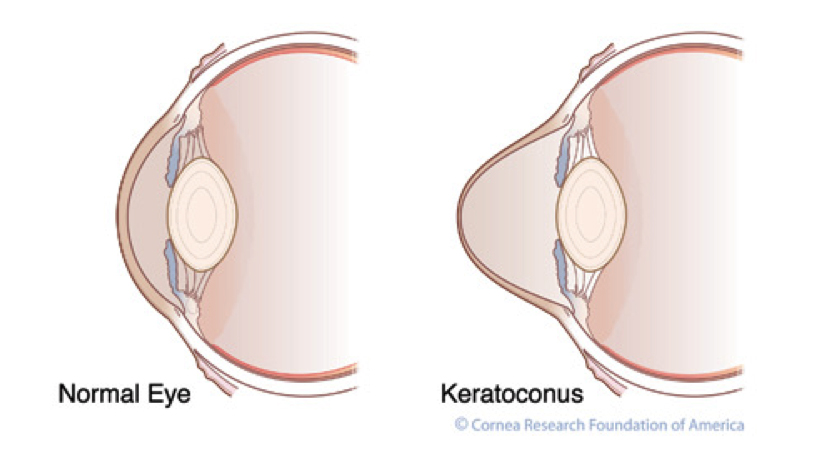 keratoconus, eye conditions, symptoms, cause, diagnosis, treatment, cure,