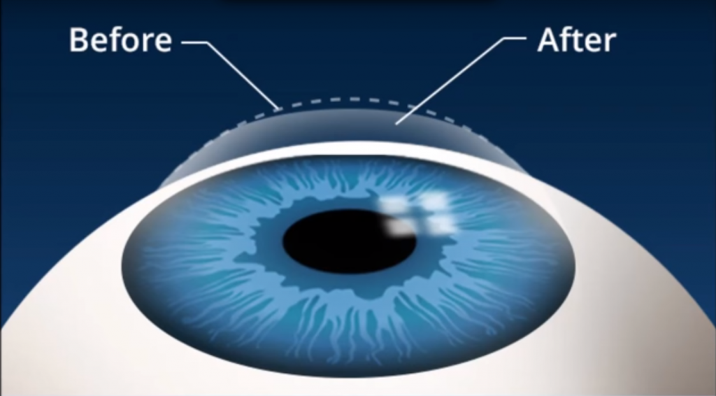 Vision Correction For Laser Eye Surgery
