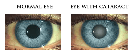 cataract graphic